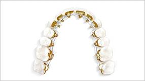 Ortodoncia lingual clínicas Ortodoncis