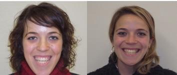 combinacion ortodoncia y cirugía