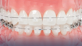 Sistema Damon en clínicas Ortodoncis