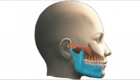 Cirugía en clínicas Ortodoncis