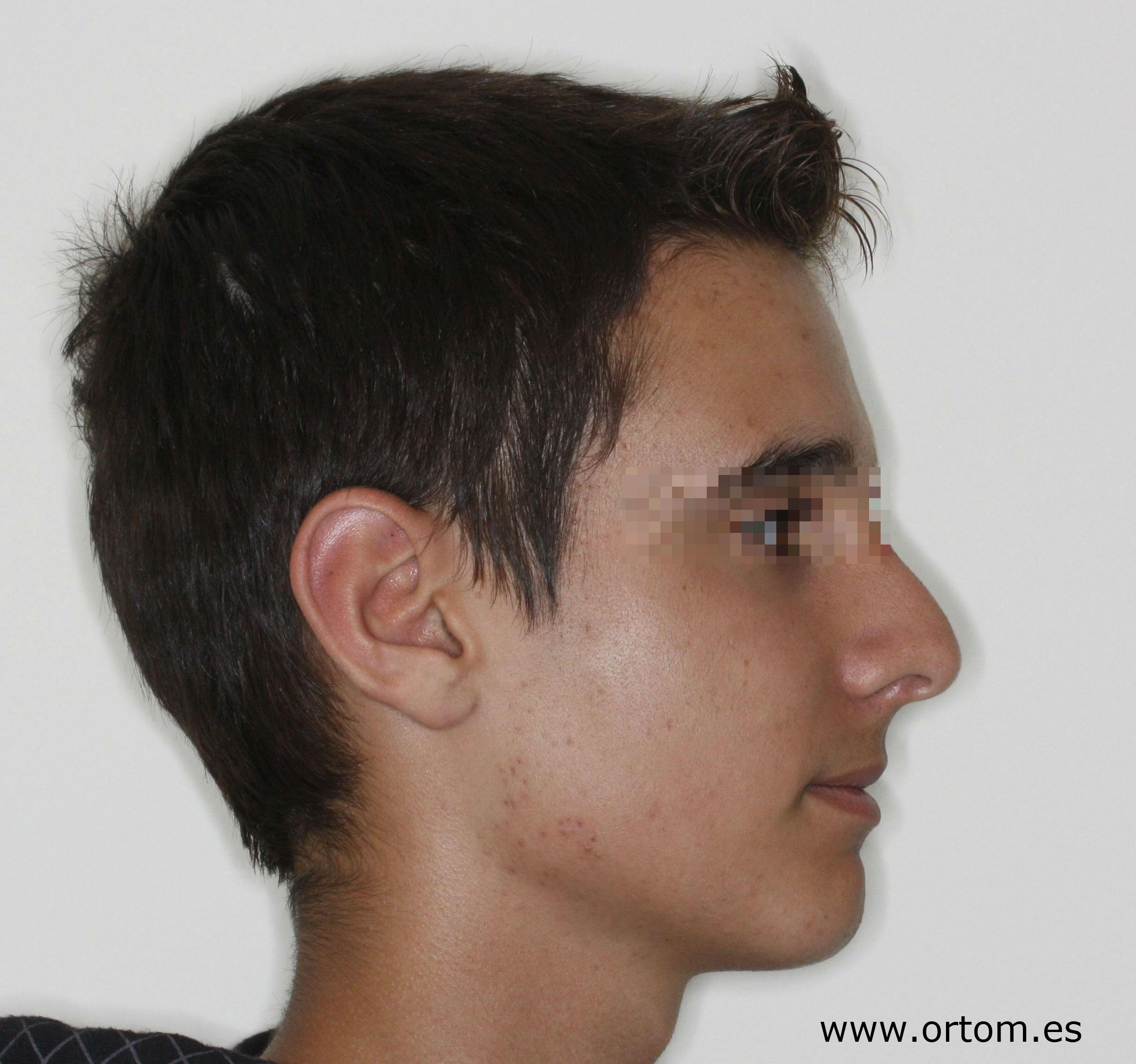 ¿cómo puede un chico obtener una mejor mandíbula?