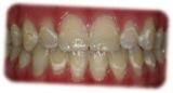Descalcificacion de los dientes COped Ortodoncia