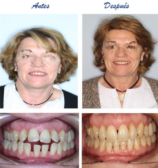 ortodoncis madrid