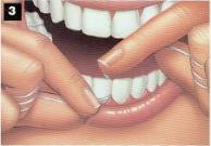 procedimiento seda3