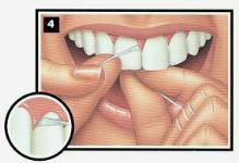 procedimiento seda4